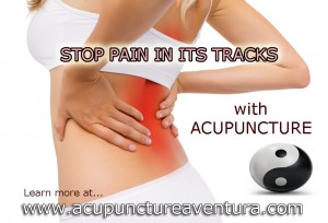 Acupuncture for Chronic Pain in Aventura Florida