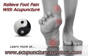 Acupuncture for Foot Pain in Aventura Florida 33160