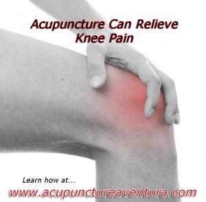 Acupuncture for Knee Pain in Aventura Florida 33160