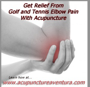 Acupuncture for Tennis and Golf Elbow in Aventura Florida 33160