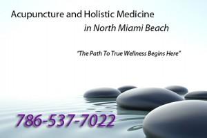Acupuncture in North Miami Beach Florida